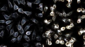 Nano, nanopartiklar Noen av cellene som ble eksponert til nano-TiO2 viser tegn på en type celle død som heter apoptose. Dette er en regulert type celle død som kroppen bruker for å bli kvit celler som er skadet på forskjellige måter.